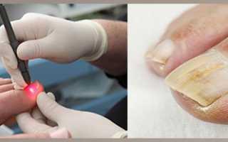 Лазерное лечение грибка ногтей спб отзывы