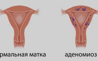 Лечение аденомиоза матки народными средствами отзывы