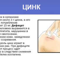Коричневая полоска на ногте