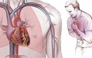 Стенокардия лечение народными средствами отзывы