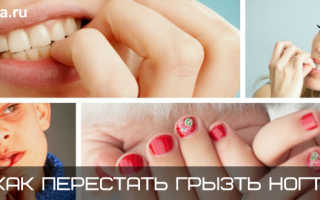 Обгрызанные ногти до и после