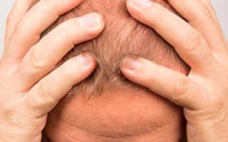 Как отрастить волосы на залысинах