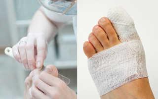 Болит палец после удаления ногтя