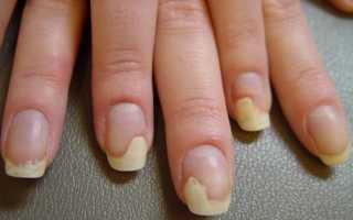 Онихолизис ногтей после гель лака