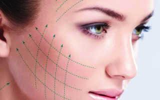 Подтяжка нитями нижней части лица отзывы