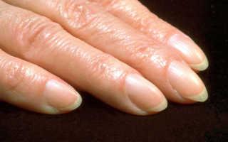 Почему закручиваются ногти