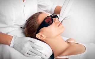 Лазерная эпиляция лица отзывы и результаты
