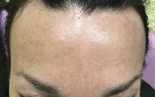 Могут ли от ботокса выпадать волосы